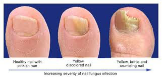 Toe Nail Polish To Hide Fungus