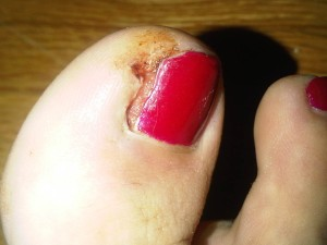 womans ingrown toenail on big toe.